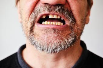 O que significa quando os dentes estão caindo em um sonho?